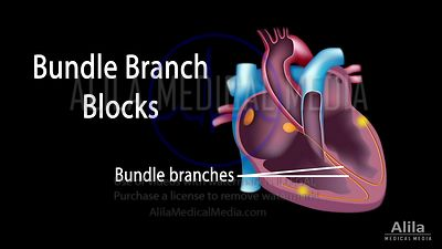 Bundle branch block NARRATED animation.