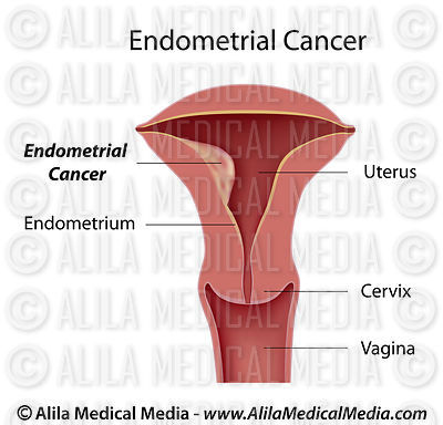 Endometrial cancer, labeled diagram.