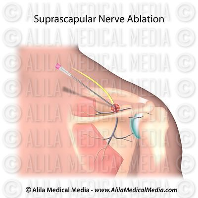Suprascapular nerve radiofrequency ablation