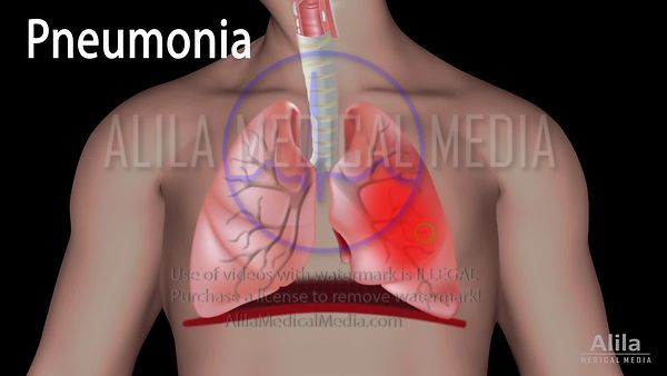 Pneumonia NARRATED animation