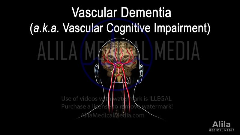 Vascular dementia NARRATED animation