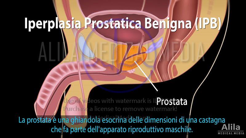 A prosztata szövődményei A prosztatitis befolyásolja a vonzerőt
