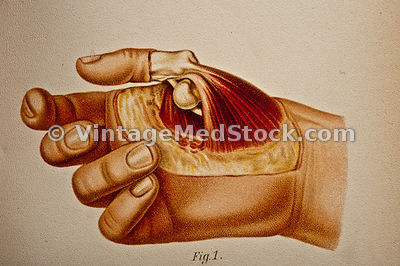 Hand: Muscular and Skeletal