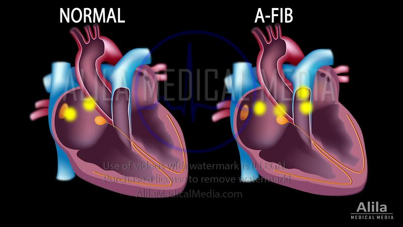 Fibrillation auriculaire vs rythme sinusal normal, animation