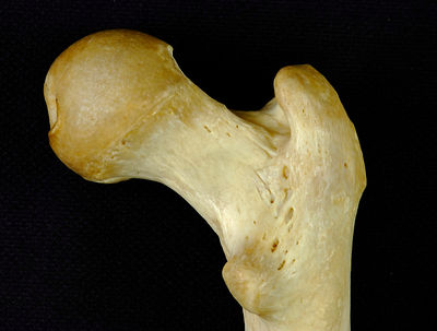 Posterior view of head of right femur