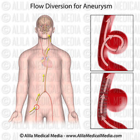 Flow diversion for aneurysm, unlabeled.