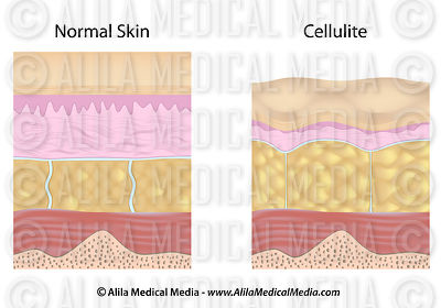 Cellulite versus normal skin unlabeled