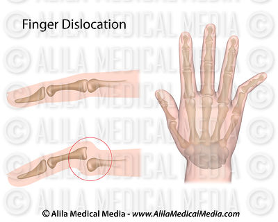 Finger dislocation
