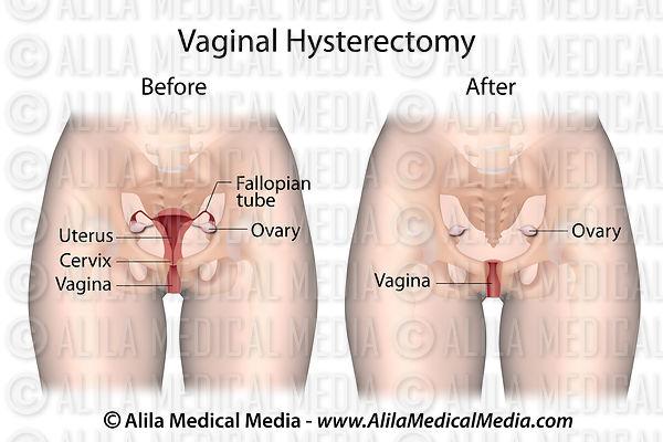 Orgasm soon after a hysterectomy, denise austi nude