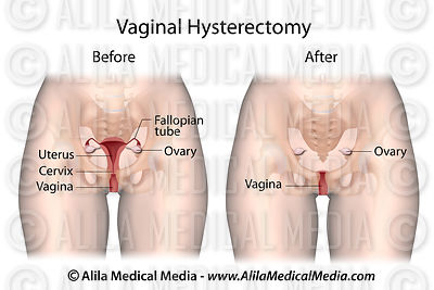 Vaginal Hysterectomy for Prolapse