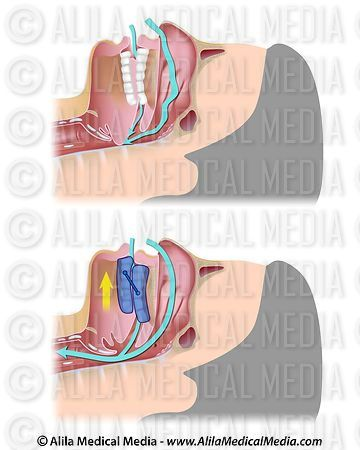 Obstructive sleep apnea treatment with a mandibular advancement device.