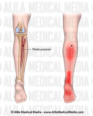 Trigger points and referred pain for the tibialis posterior
