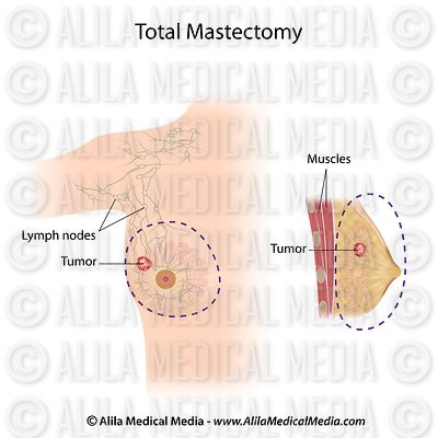 Total mastectomy labeled