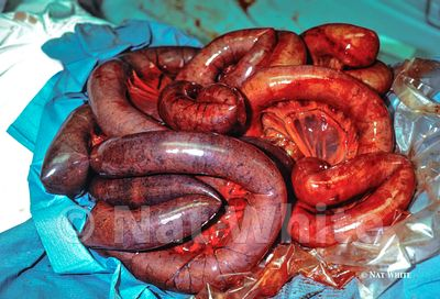 Small_intestine_volvulus-1-February_10_2017