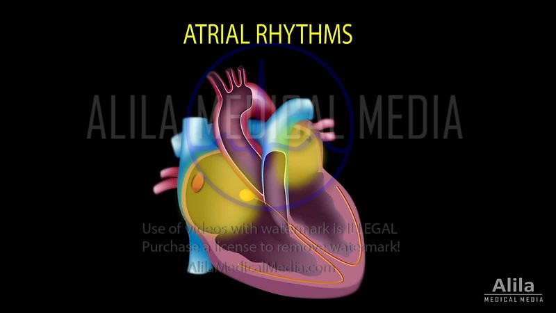 Cardiac arrhythmias - ATRIAL rhythms ONLY