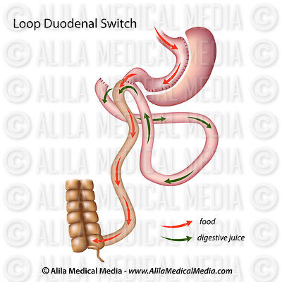 Loop duodenal switch unlabeled