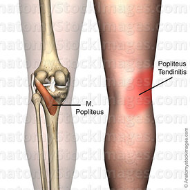 knee-musculus-popliteus-muscle-tendinitis-pain-back-skin-names