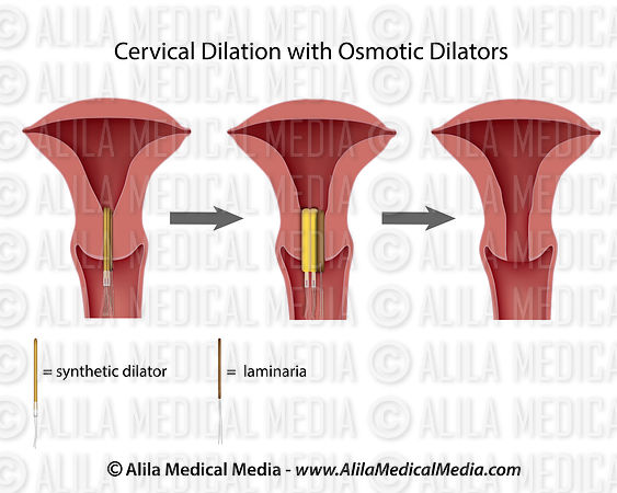 Cervical dilation with osmotic dilators