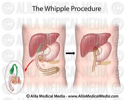 The Whipple Procedure