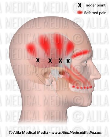 Trigger points and referred pain for the temporalis.