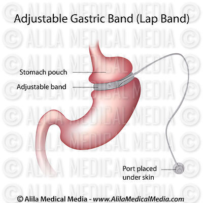 Gastric Band Weight Loss Surgery