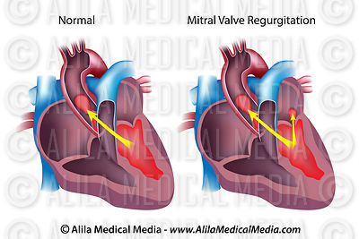 Mitral valve regurgitation unlabeled