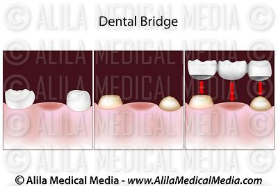 Dental bridge procedure