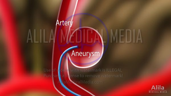 Endovascular coiling NARRATED animation.
