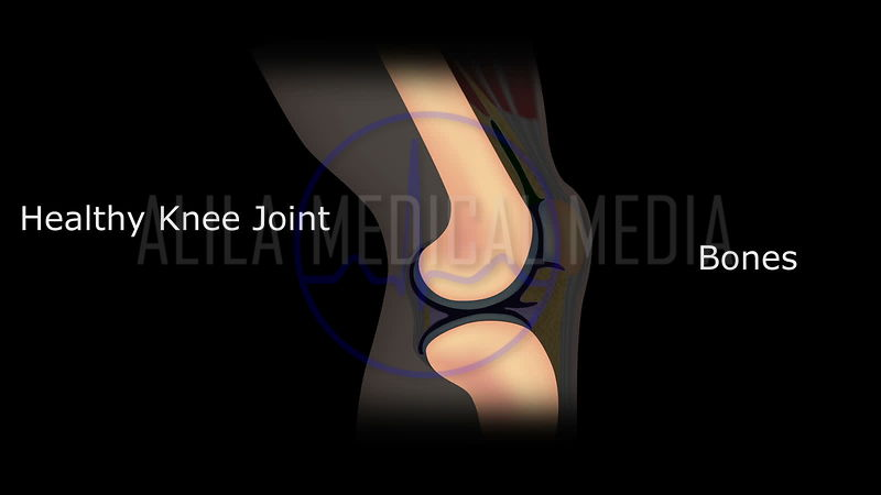 Osteoarthritis of knee joint, video with text.