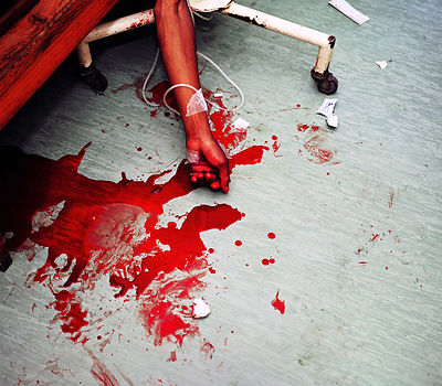 Black man, with gunshot wounds, Khayelitsha Hospital, Cape Town, South Africa