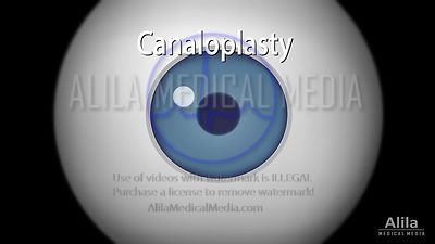 Canaloplasty procedure, NARRATED animation.