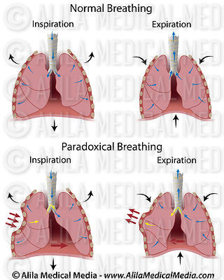 Paradoxical breathing.