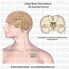 Deep brain stimulation for essential tremor