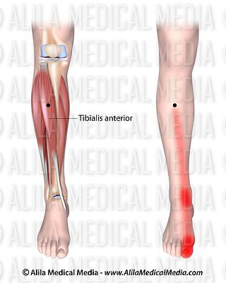 Trigger points and referred pain for the tibialis anterior