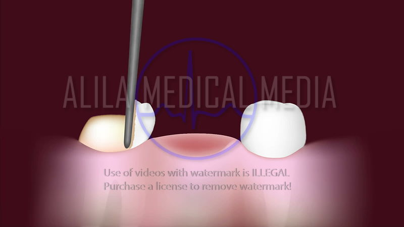 Dental bridge procedure video