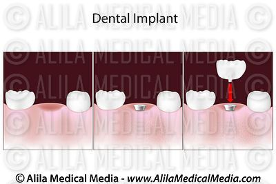 Procedimiento de implante dental
