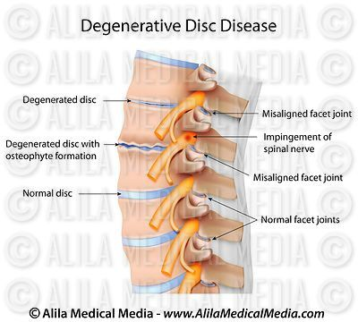 Degenerative disc disease (DDD)
