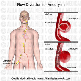 Flow diversion for aneurysm, labeled.