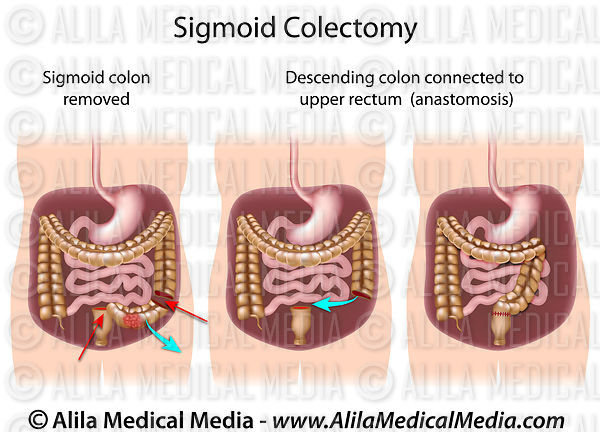 Sigmoid colectomy.