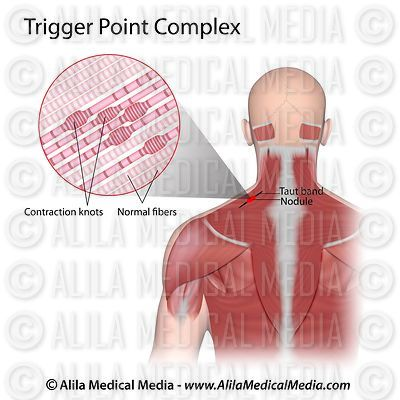 Trigger point complex anatomy.