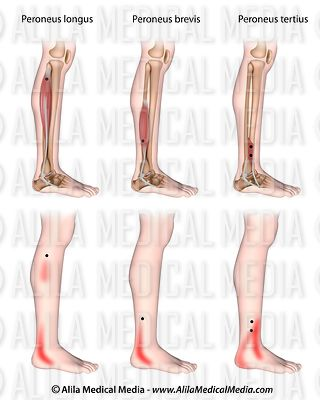 Trigger points and referred pain for the peroneal muscles