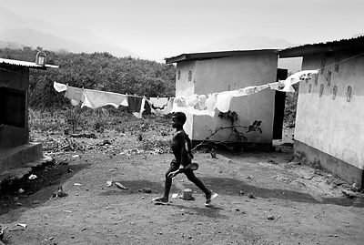 Sierra Leone - The Mutilated - - Scars.