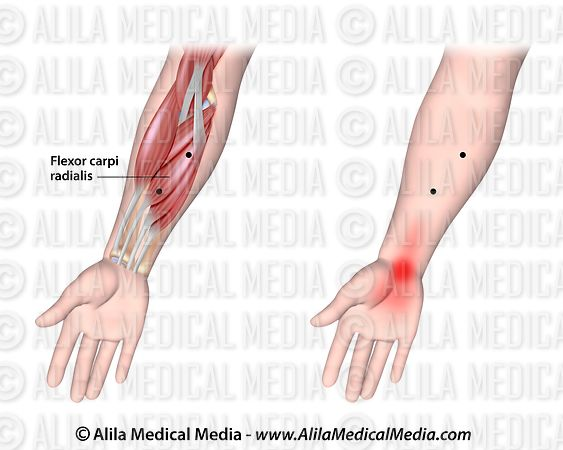 Trigger points and referred pain for the flexor carpi radialis