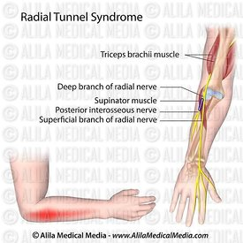 Radial tunnel syndrome