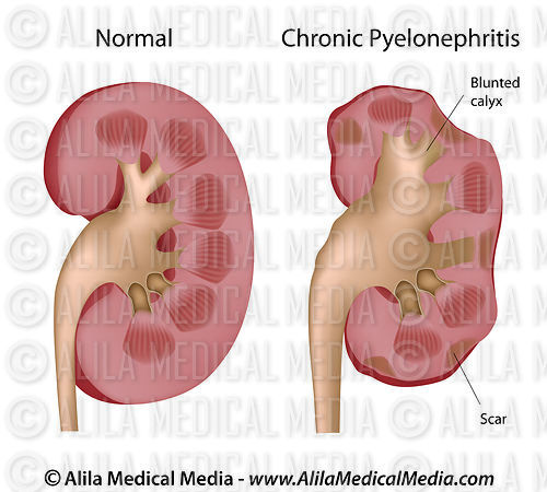 Kidney Chronic pyelonephritis