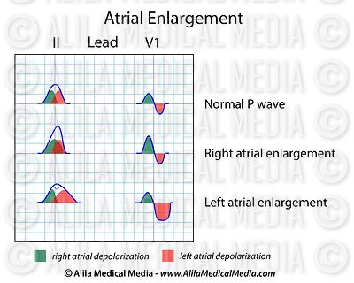 Atrial enlargement ECG