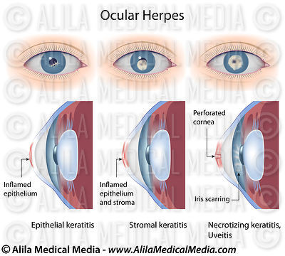 Herpes of the eye