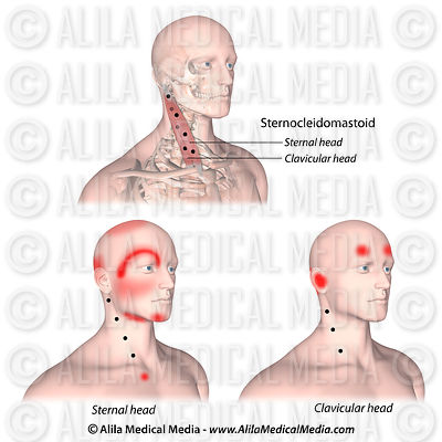 Trigger points and referred pain for the sternocleidomastoid