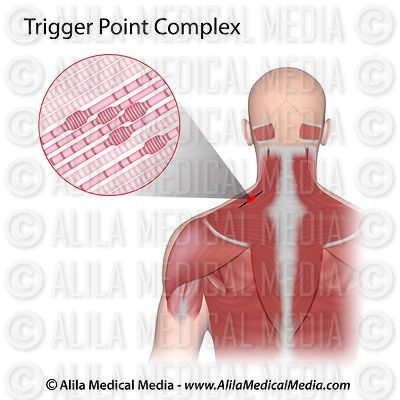 Trigger point complex unlabeled.
