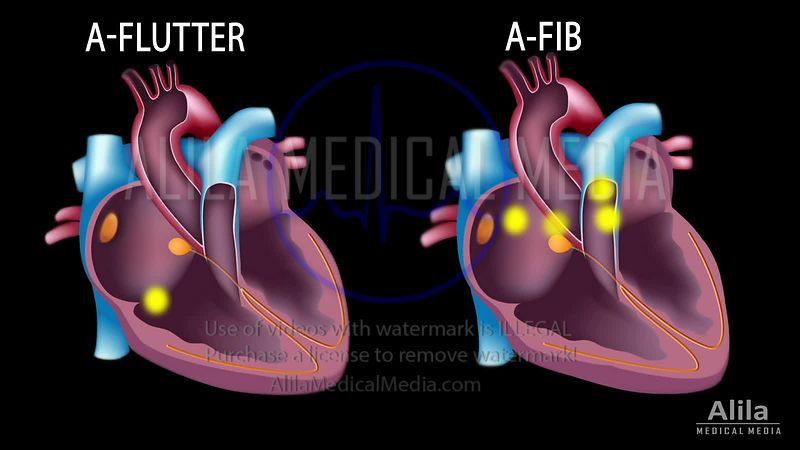 Alila Medical Media | Heart and Blood Circulation Videos